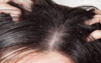 dandruff-in-hair